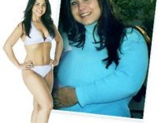 Лечение ожирения 3 степени